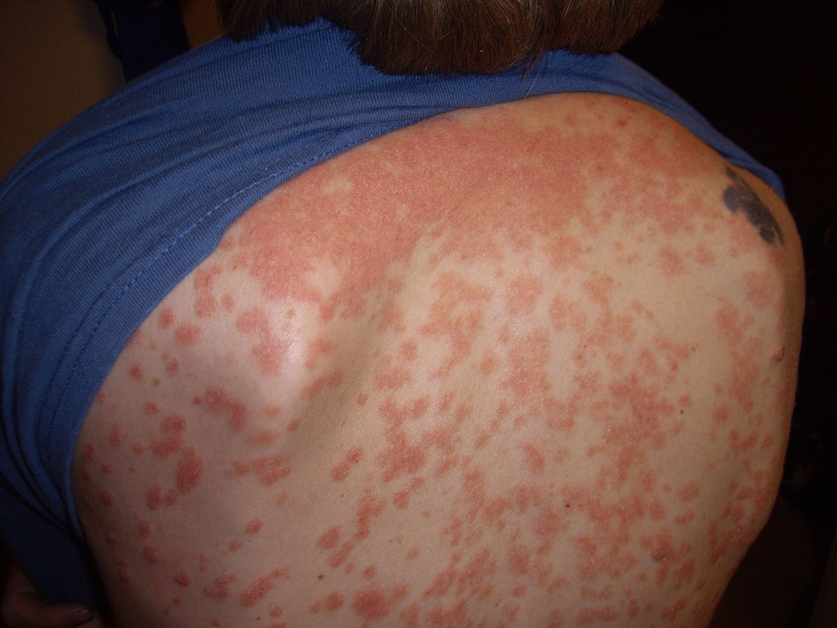 is psoriasis caused by stress