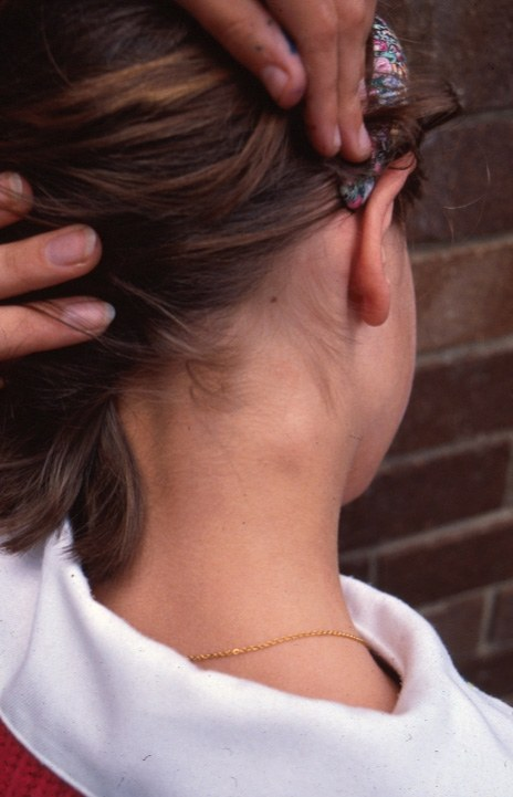 Can Stress Cause Swollen Lymph Nodes? | Betterhelp