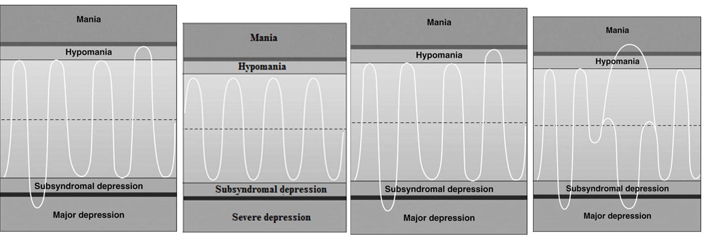 How To Diagnose Bipolar Disorder: DSM-5 Criteria | Betterhelp