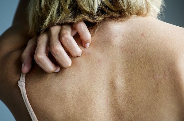 What Is Skin Picking Disorder Betterhelp